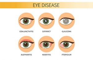 Eye Diseases; Cataracts, Glaucoma, Diabetes