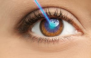 Laser Vision Correction – Lasik Evaluation